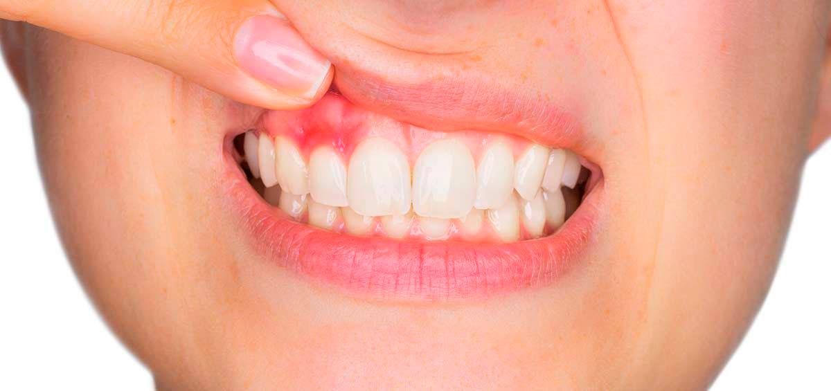 Catarroja Dental mascarilla covid-19
