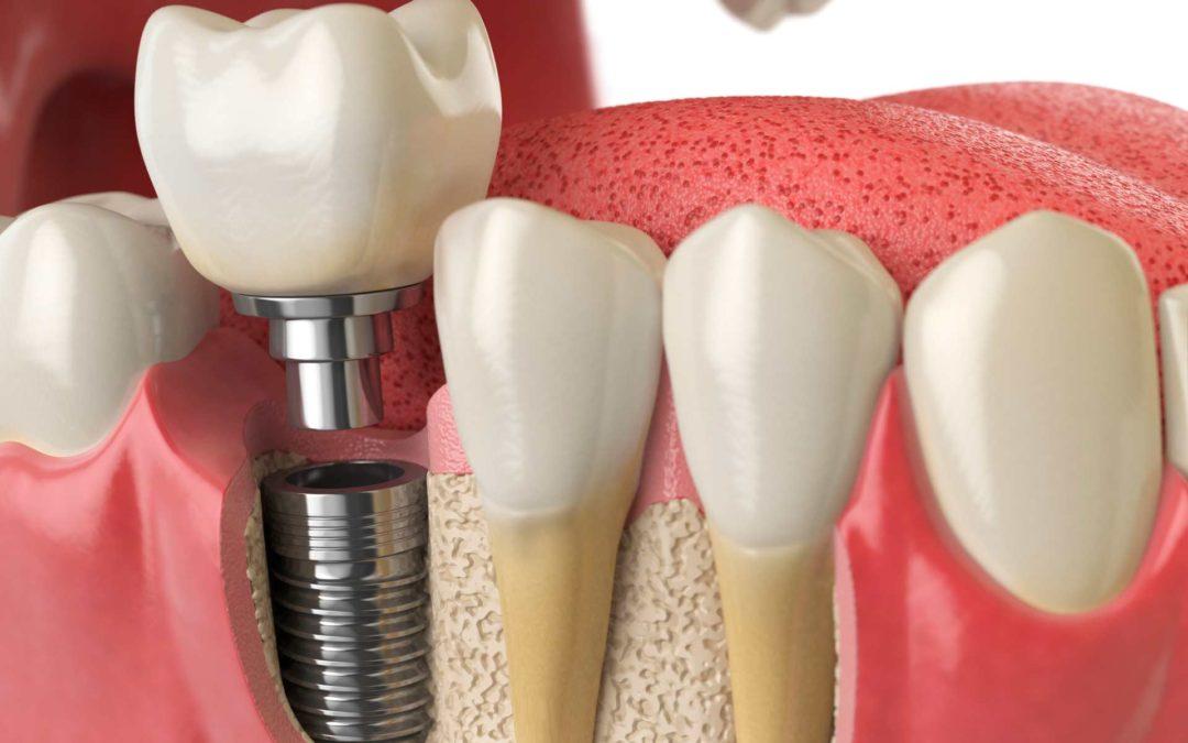 Implantes dentales: respuestas a las dudas más frecuentes