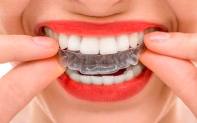 Blanqueamiento dental desde la comodidad de tu casa