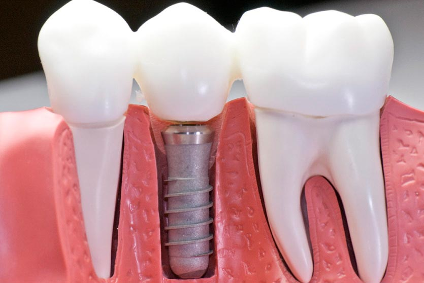 Catarroja Dental Enjuague bucal azul