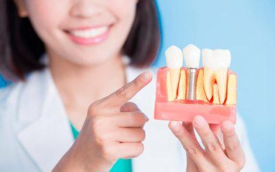 Cuidados postoperatorios para después de una cirugía de implantes dentales